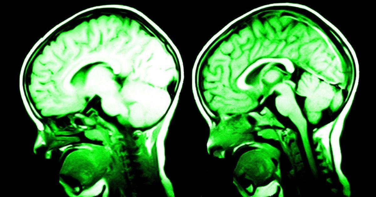 Ces 7éléments améliorent lacapacité deton cerveau !