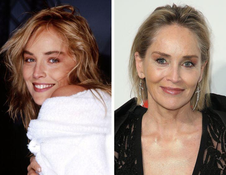 Regarde à quoi ressemblaient les célébrités avant d'avoir modifié leur apparence