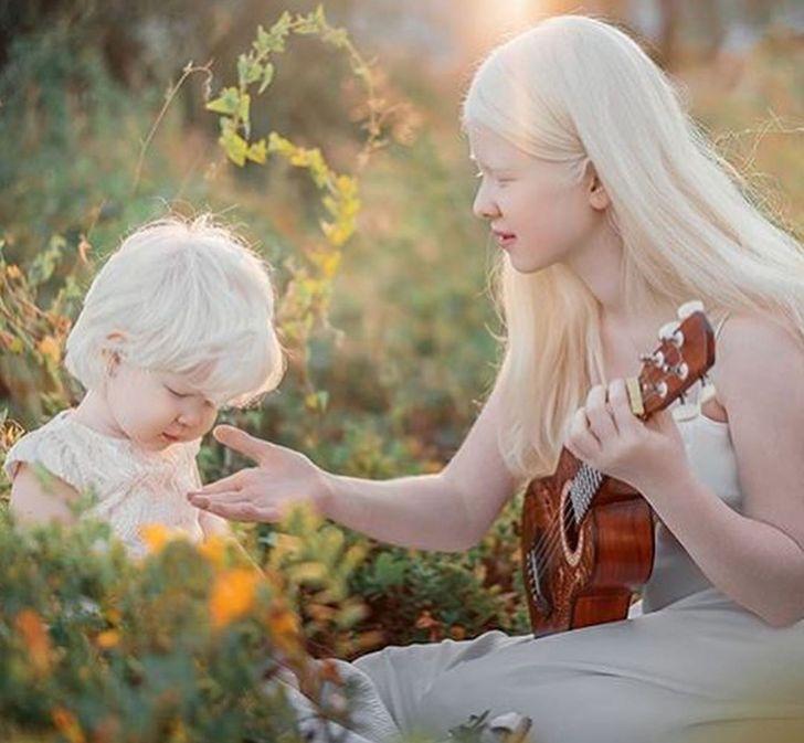Deux sœurs albinos nées à 12 ans d'intervalle agitent la toile avec leurs photos
